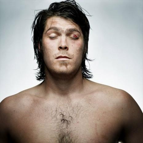 Wessel Jooste denis broken faces