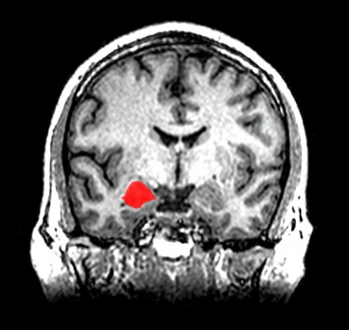 Položaj amigdale