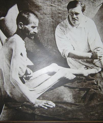 Албанска голгота - Српски војник после преласка Албаније, тежак свега 27 килограма.