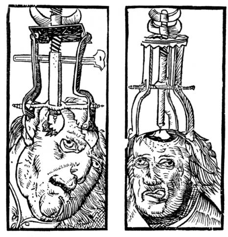 Srednjovekovni čin trepanacije.